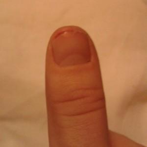 sore thumb crafting sadness